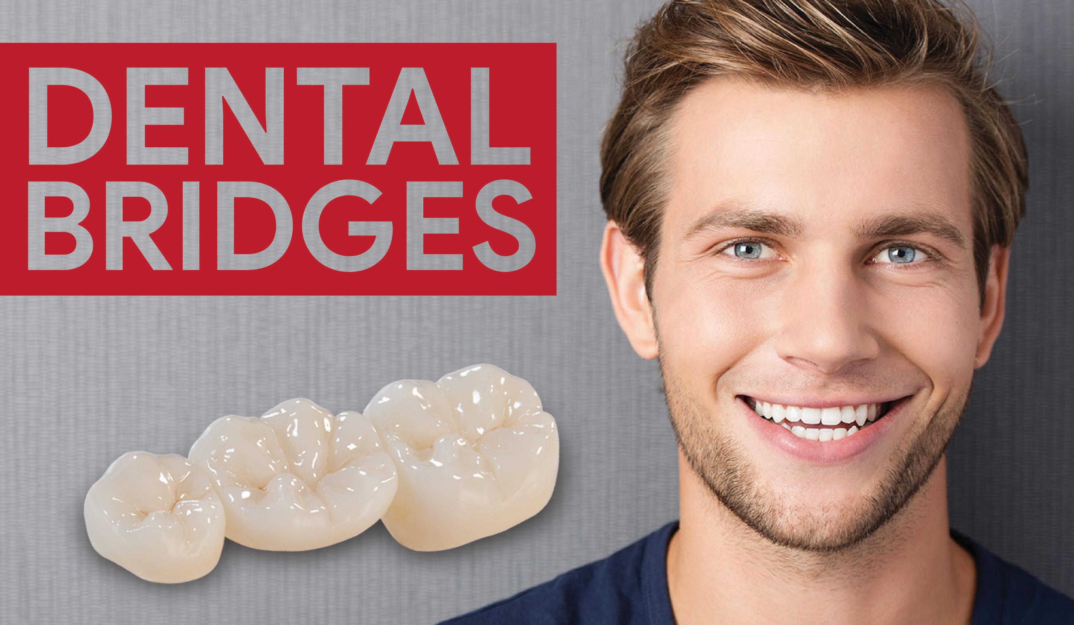 missing tooth bridge