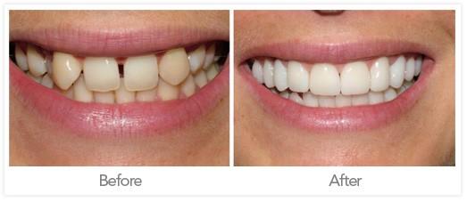 Dental Crown Jonesboro ar