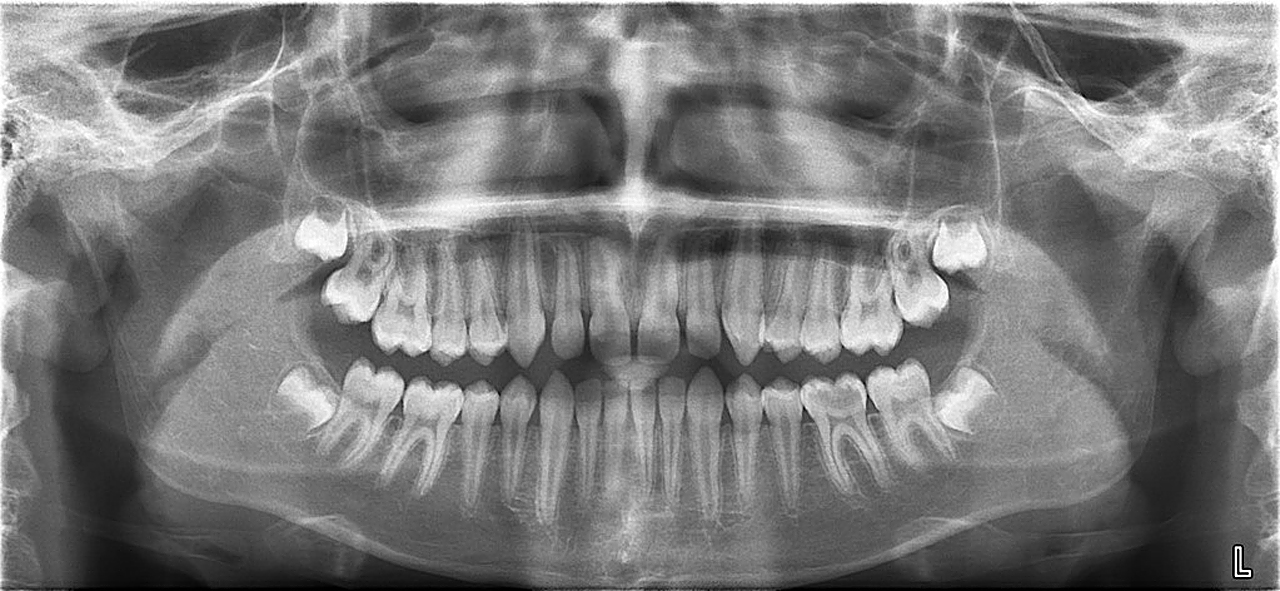 Dental technology and 3D x-rays