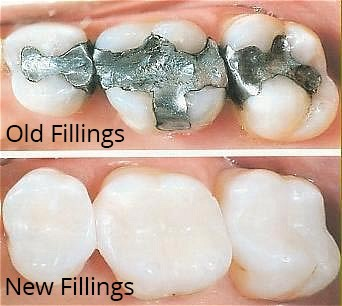tooth colored fillings and composites