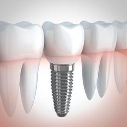 missing tooth dental implants Little Rock AR