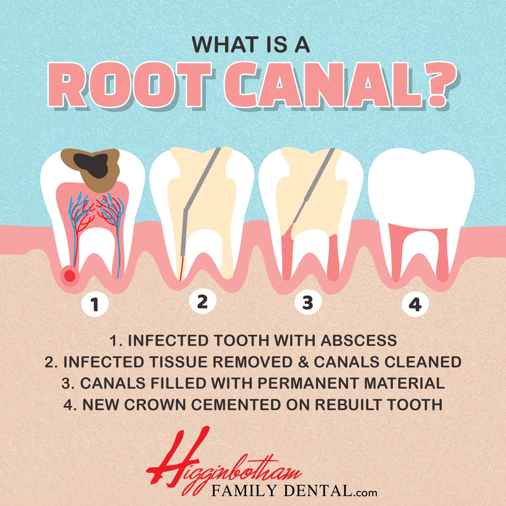 Root Canal Dentist in West Memphis, AR