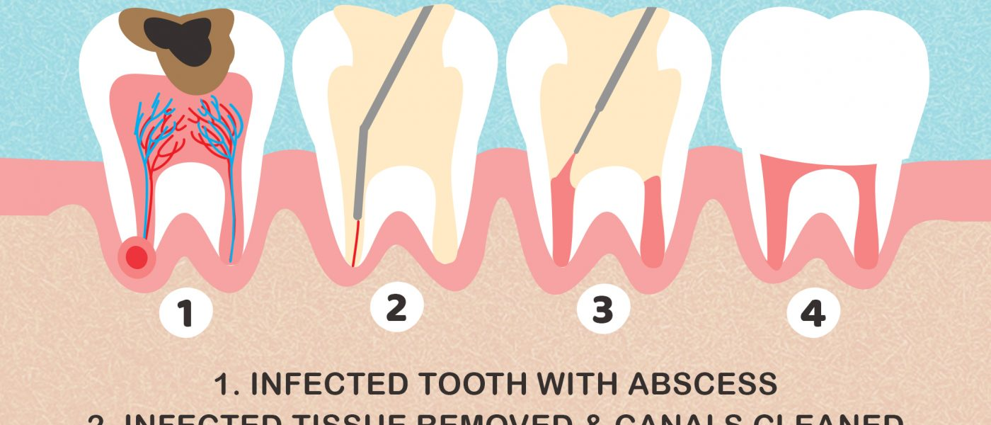 Root Canal in Memphis