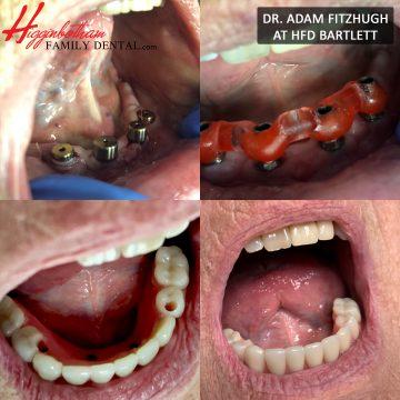 Dental Implant Higginbotham Family Dental