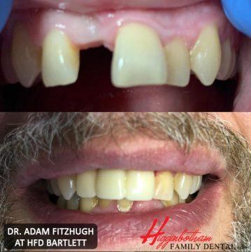 Dental Implants by Higginbotham Family Dental