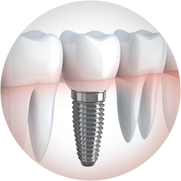 missing tooth dental implants Little Rock AR